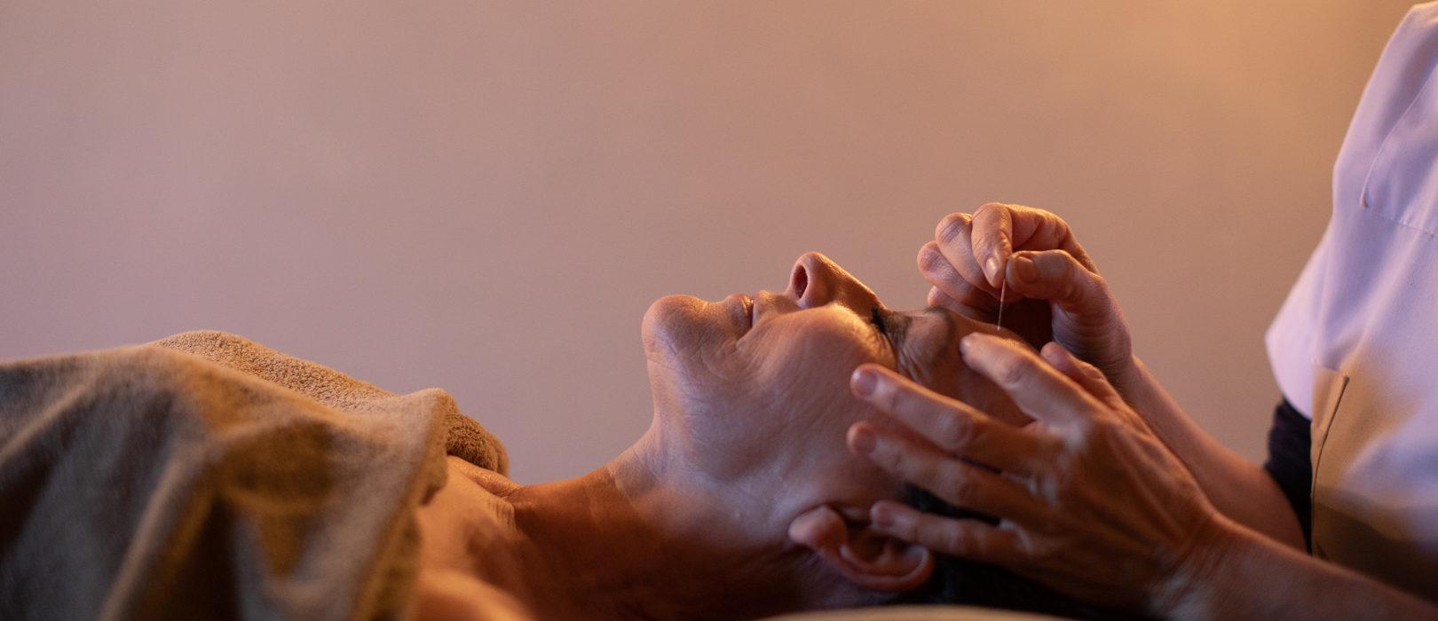 Séance de lifting par acupuncture